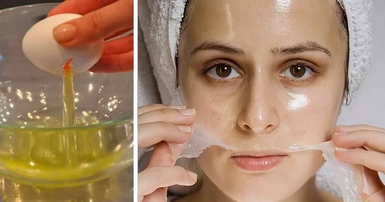 Как сделать маску от прыщей в домашних условиях