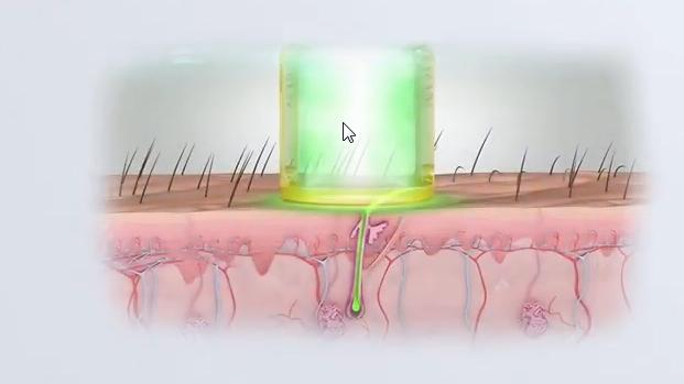 Aventura laser hair removal.